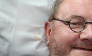 Kann man mit akupunktur rauchen aufhoren
